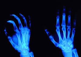 Neurointerventional Radiology Fellowship